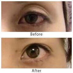 眼瞼下垂_2