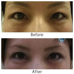 切らない眼瞼下垂手術と眉毛下皮膚切除術