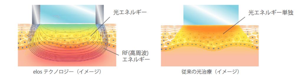光エネルギーの伝導イメージ
