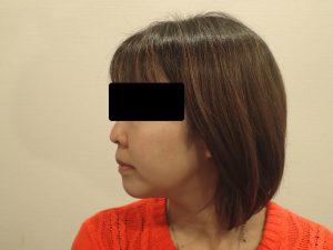 顎下脂肪吸引の6ヵ月後