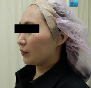 両頬と顎下のミックスリフトの経過