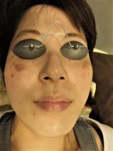 【皮膚科専門医による施術】シミ取りレーザー治療へのこだわり(品川院・銀座院・日本橋院)