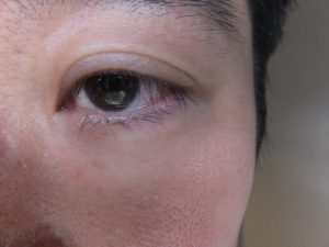 【皮膚科専門医による施術】涙袋形成ヒアルロン酸注入へのこだわり (品川・銀座・日本橋院)