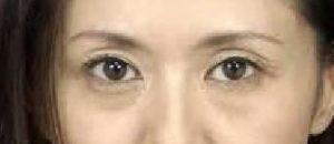 上まぶたの凹みにヒアル注入治療 sunken eyeとは (品川・銀座院)