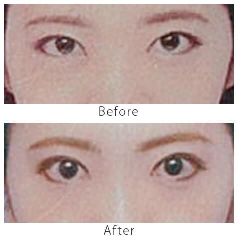 黒目整形症例4