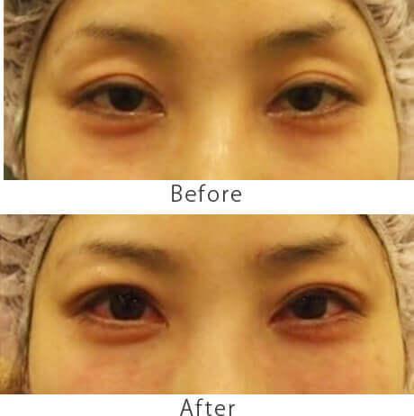 黒目整形症例2