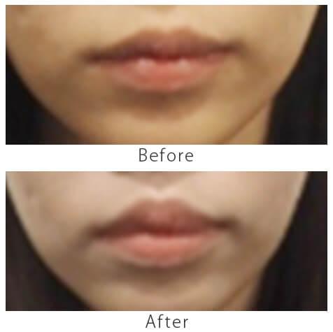 上唇小帯切除術1