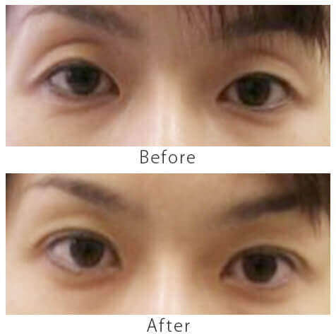 眼瞼下垂症切開なしの治療