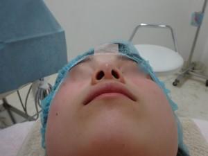 鼻翼縮小術前