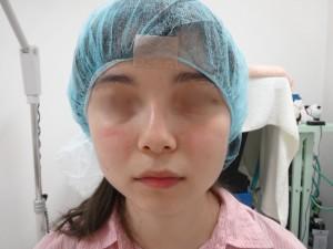 切らない鼻翼縮小術 術前