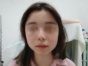 切らない鼻翼縮小術 術後