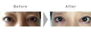 20160926_eye_ba