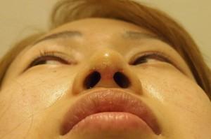 鼻尖縮小術 術後5日