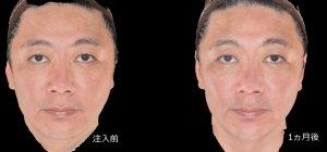 2 face 3