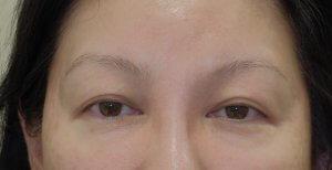 眉下切開の症例です。
