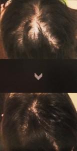 AGA・女性薄毛治療にDr.CYJ Hair Filler (品川・銀座・日本橋院)