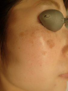 【皮膚科専門医による施術】しみレーザー治療のイメージ 【動画あり】