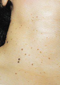 【皮膚科専門医による施術】首にある茶色イボのお悩みを10分程度の治療で解決します。 (銀座・品川・日本橋院)