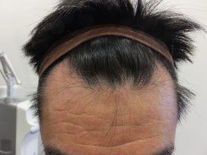 女性薄毛と男性型脱毛症(AGA)の各種治療説明