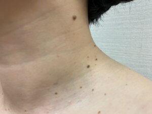 【皮膚科専門医による施術】首の茶色イボ治療は傷跡がほぼ無い上に結構若返る。
